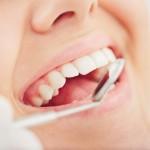 Les rendez-vous de dépistage chez le dentiste ne sont pas suffisants
