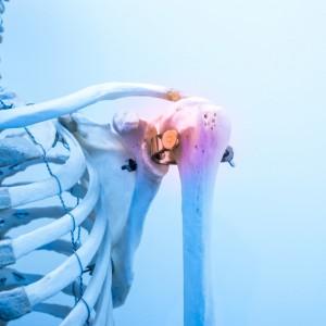 L'ostéoporose est une fragilité osseuse