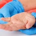 Parkinson, une maladie lente et dégénérative