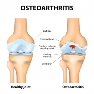 qu'est-ce-que-l'arthrose