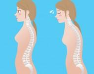 Lire la suite de Lombalgie : définition, symptômes, traitements