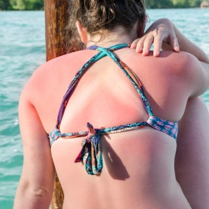 Back of woman in bikini with a sunburn