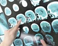 Lire la suite de Sclérose en plaques :  le rôle des lymphocytes dans la régénération