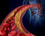 Lire la suite de Détecter plus tôt une maladie cardiovasculaire ?