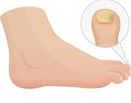 Lire la suite de Comment bien soigner ses pieds ? Les conseils du doc