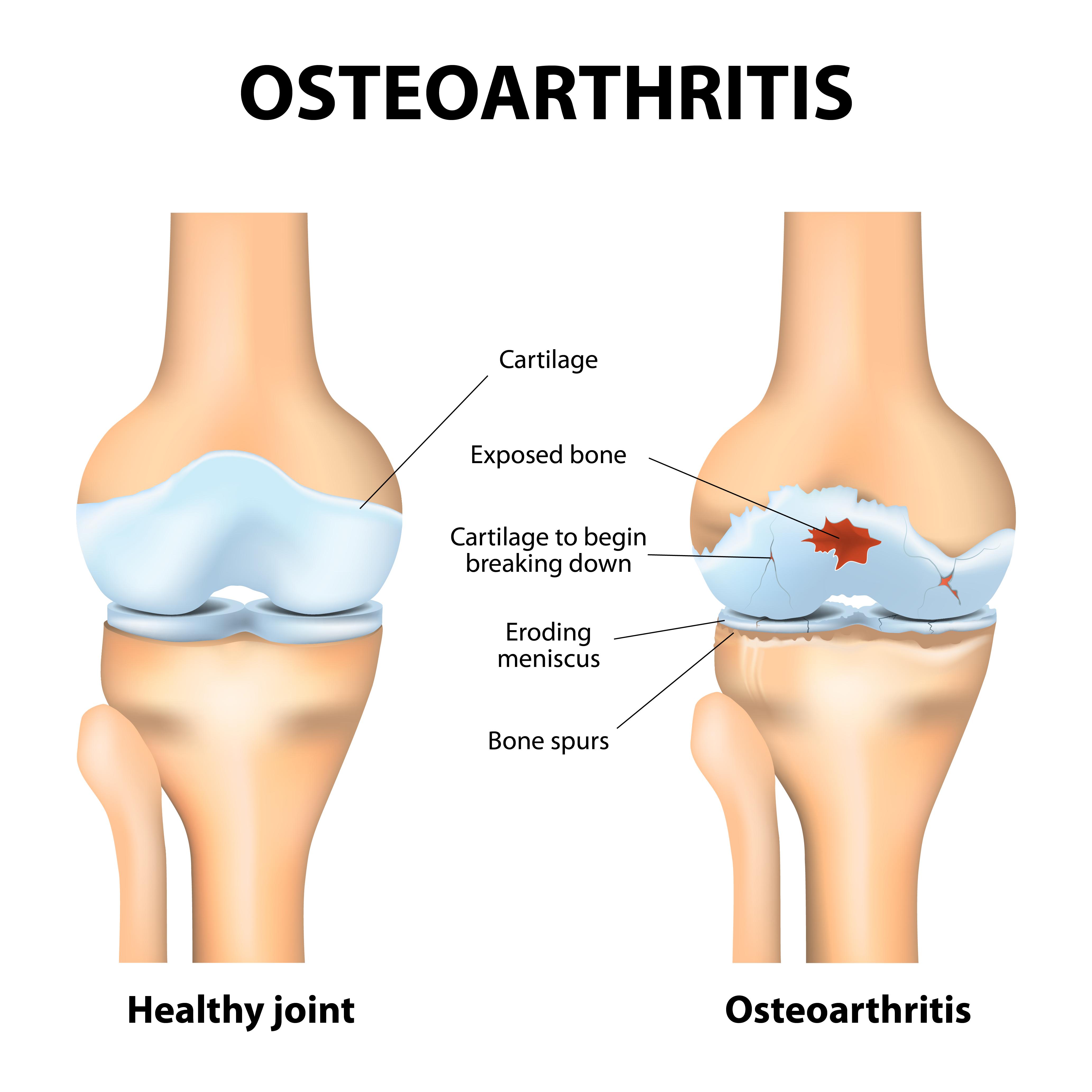 Arthrose Définition : Qu'est-ce Que L'arthrose
