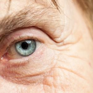 Naturel et irrémédiable, personne n'échappe au vieillissement oculaire