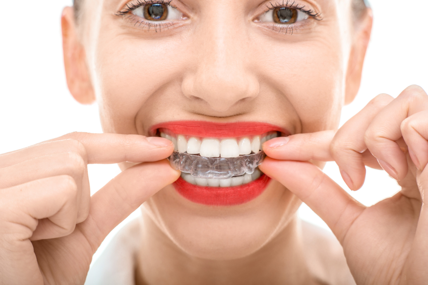 1a5d8d2603181 Un nouveau phénomène émerge du web depuis peu : de nombreuses vidéos  expliquent aux adolescents de quelle manière fabriquer soi-même son appareil  dentaire.