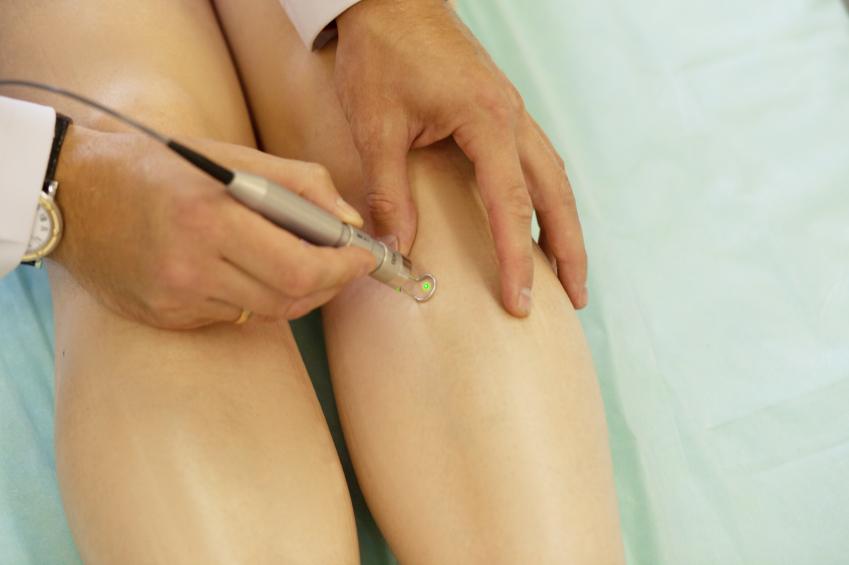 traitement-des-varices