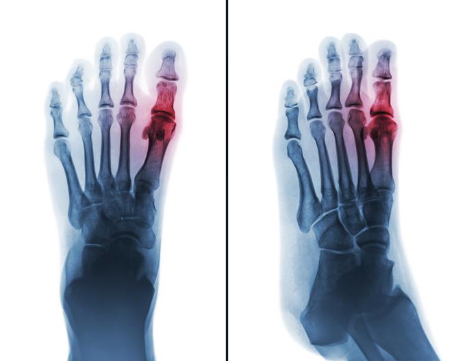 arthrose du pied traitement