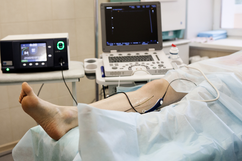 chirurgie-varices