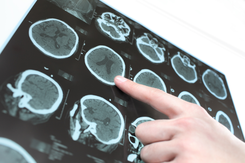 sclerose-en-plaques-pas-hereditaire