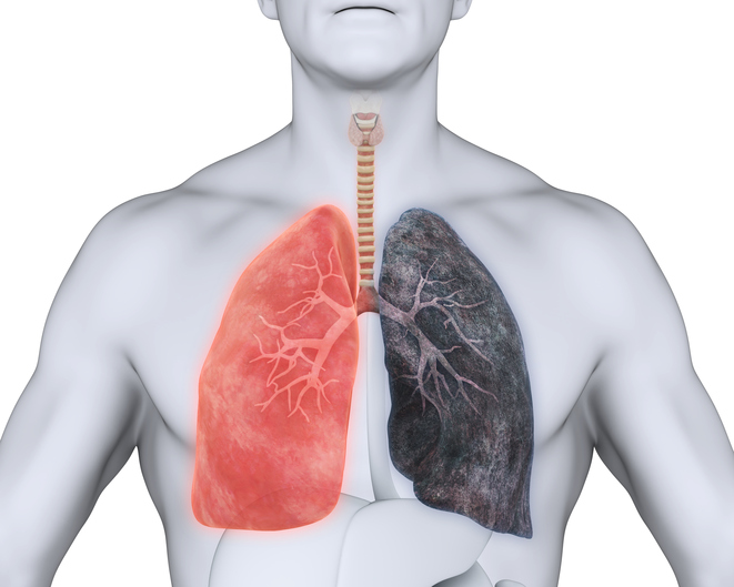 COPD and pulmonary emphysema: what are the links?